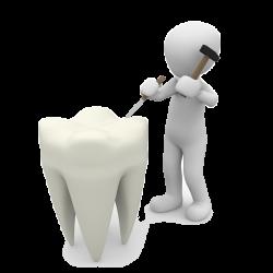 Parodontoză